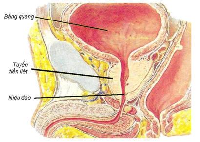 Ung thư tuyến tiền liệt - Căn bệnh nguy hiểm ở nam giới 1