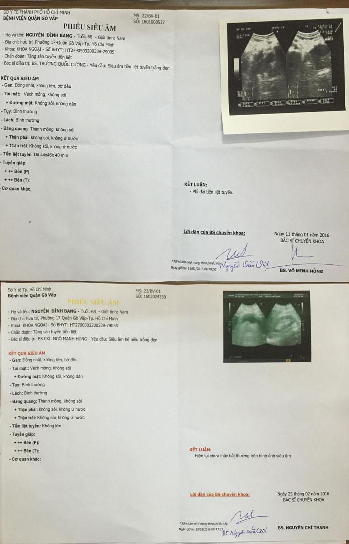 U xơ tái phát sau phẫu thuật 2